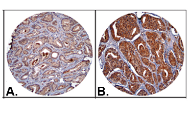Tissue Microarray showing CXCL5 protein expression in prostate tumors.